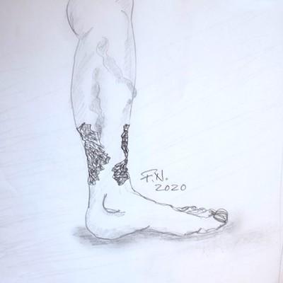 Offenes Bein ulcus dr netzer - Offenes Bein