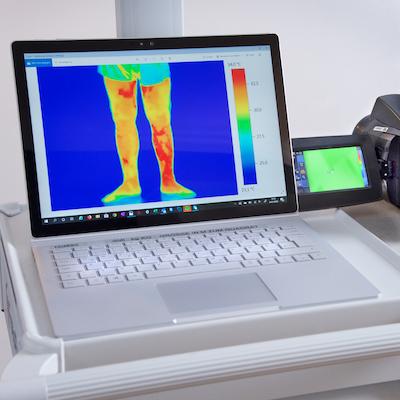 Thermografie Venendiagnostik - Thermografie