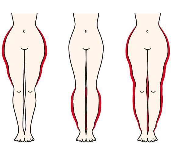 liposuktion lipoedem muenchen dr netzer - Liposuktion
